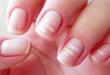 remover-manchas-brancas-nas-unhas