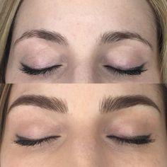 Antes e depois de sobrancelhas